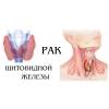 Операции опухолей щитовидной железы